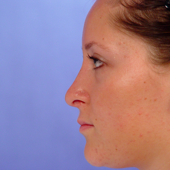 18-24 year old woman treated with Rhinoplasty after 3570323