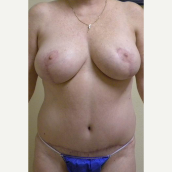 25-34 year old woman treated with Mommy Makeover after 3434774