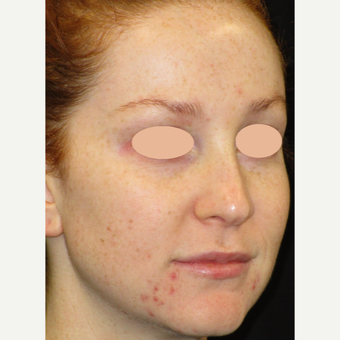 25-34 year old woman treated with Acne Treatment before 3150160
