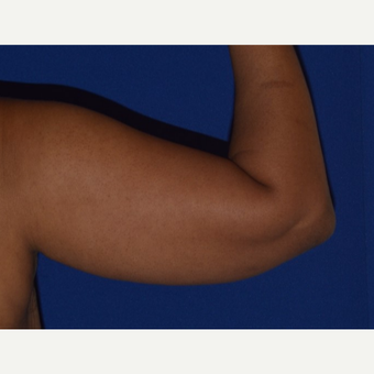 45-54 year old woman's arms treated with Smart Lipo before 2978408
