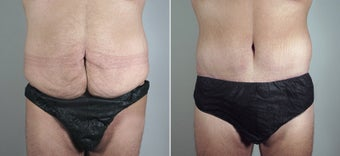 25 Year Old Male Seeking Tummy Tuck before 720780