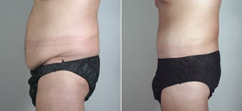 25 Year Old Male Seeking Tummy Tuck after 720780