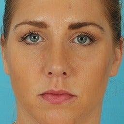 Rhinoplasty after 1675615