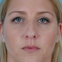 Rhinoplasty before 1675615