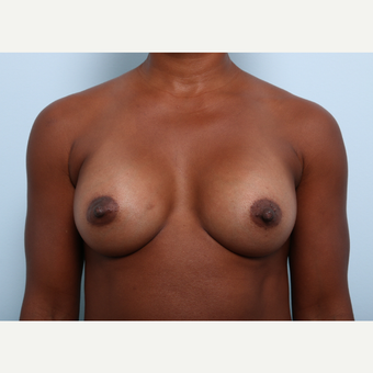 Breast Augmentation after 3345276
