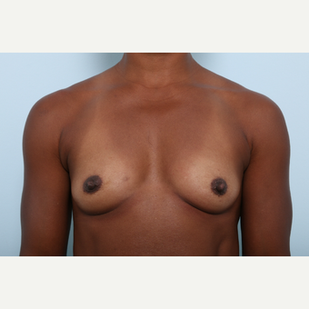 Breast Augmentation before 3345276
