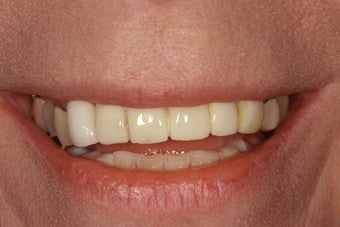 Missing and broken teeth for this patient were replaced implants and crowns.