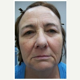 57 year old woman treated with InMode Fractora to the face and neck before 1983055