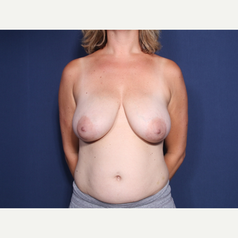 35-44 year old woman treated with Breast Lift with Implants (view 1 of 2) before 3253690