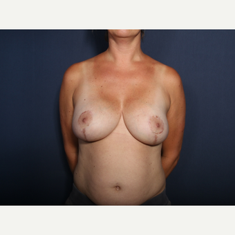 35-44 year old woman treated with Breast Lift with Implants (view 1 of 2) after 3253690