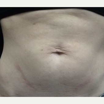 35-44 year old woman treated with Skin Tightening