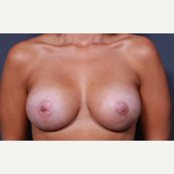 33 year old woman treated with Breast Lift with Implants after 3277927