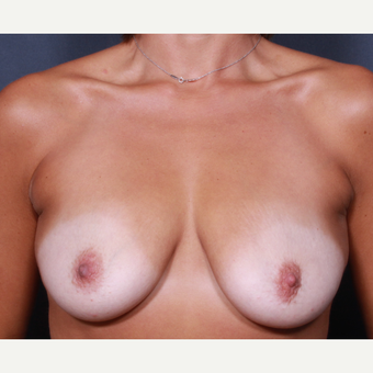 33 year old woman treated with Breast Lift with Implants before 3277927