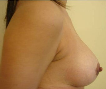 30 y.o. woman, caucasian, weight 52 kg, 1,68 height, with 1 cup size breasts, requesting 1 cup size increase after 750832
