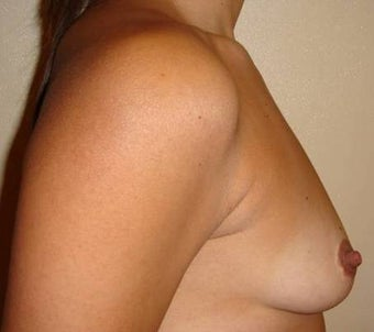 30 y.o. woman, caucasian, weight 52 kg, 1,68 height, with 1 cup size breasts, requesting 1 cup size increase before 750832