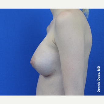 25-34 year old woman treated with Sientra Breast Implants after 3353058