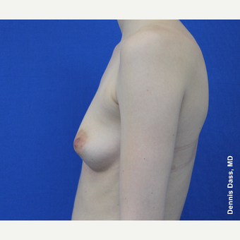 25-34 year old woman treated with Sientra Breast Implants before 3353058