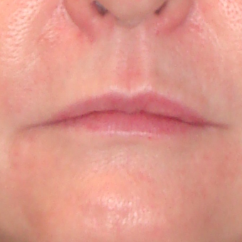 35-44 year old man treated with Lip Augmentation before 3299262