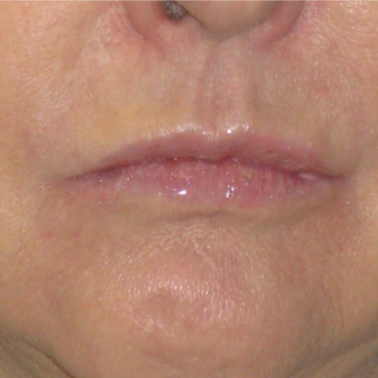 35-44 year old man treated with Lip Augmentation after 3299262