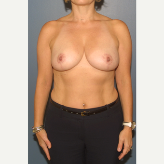 45-54 year old woman treated with Breast Reduction after 3453280