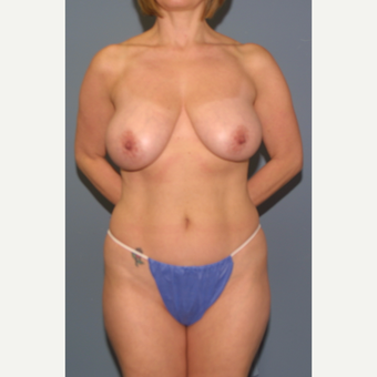45-54 year old woman treated with Breast Reduction before 3453280