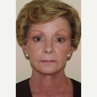 Face/Neck Lift, Forehead/Brow Lift,  with Upper & Lower Blepharoplasty