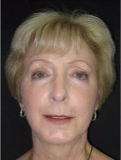 55-64 year old woman treated with Non Surgical Face Lift after 3181332