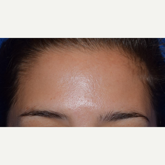 25-34 year old woman with forehead lines treated with Botox after 3642159