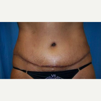 Tummy Tuck after 2200263