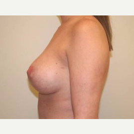 25-34 year old woman treated with Breast Lift after 3339197