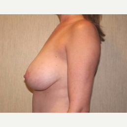 25-34 year old woman treated with Breast Lift before 3339197