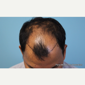 47 Year Old Male with Class V Hair Loss by Dr. Parsa Mohebi before 3814789