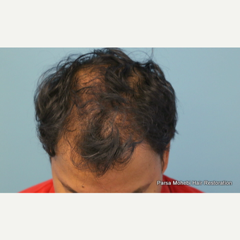 47 Year Old Male with Class V Hair Loss by Dr. Parsa Mohebi after 3814789
