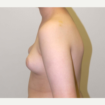 17 or under year old man treated with Male Breast Reduction before 3383255