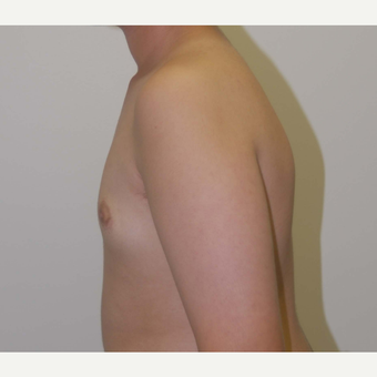 17 or under year old man treated with Male Breast Reduction after 3383255
