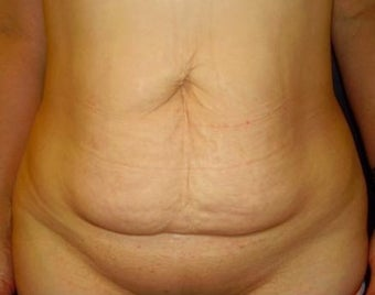 35-44 year old woman treated with Tummy Tuck before 1898894