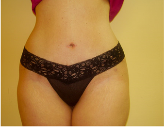35-44 year old woman treated with Tummy Tuck 1898894