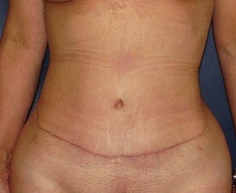 35-44 year old woman treated with Tummy Tuck after 1898894