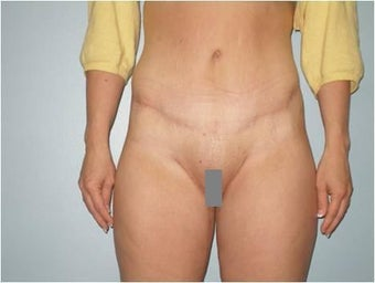 Anterior torsoplasty after massive weight loss after 350667