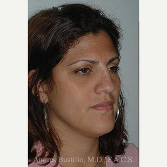 27 year old woman treated with Rhinoplasty before 3462388