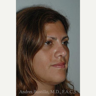 27 year old woman treated with Rhinoplasty after 3462388