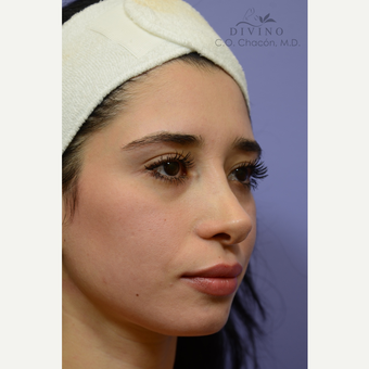 25-34 year old woman treated with Cheek Augmentation before 3421930