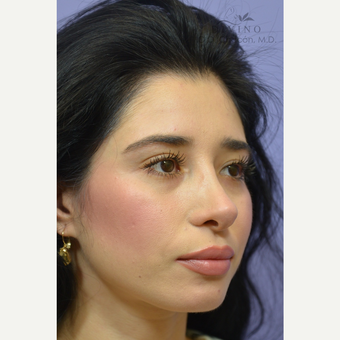 25-34 year old woman treated with Cheek Augmentation after 3421930
