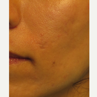 30 year old woman treated with Bellafill after 3743588