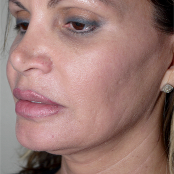 55-64 year old woman treated with Kybella before 2795485