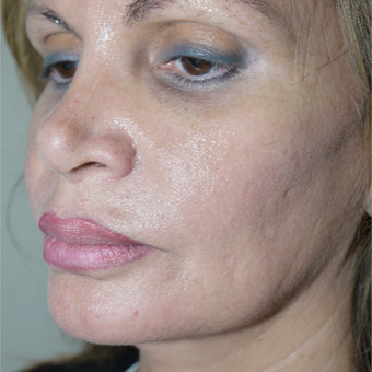 55-64 year old woman treated with Kybella after 2795485