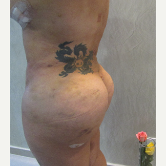 25-34 year old woman treated with Brazilian Butt Lift Revision after 3634149