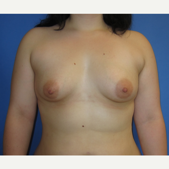 18-24 year old woman treated with Breast Implants (360cc) before 3262612
