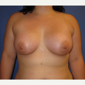 18-24 year old woman treated with Breast Implants (360cc) after 3262612