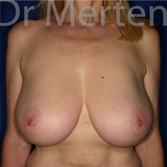 Breast Reduction before 3681213